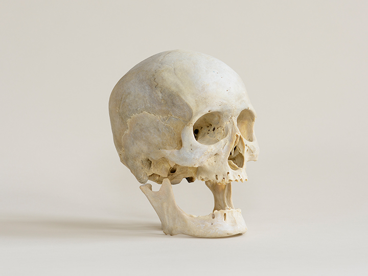 Photograph of human skull on a white surface